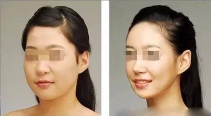 瘦脸术后多久能恢复?