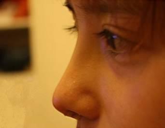 开内眼角有疤痕么?