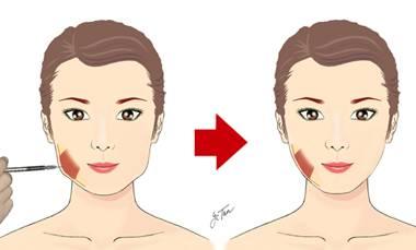 瘦脸针注射后会面瘫吗?