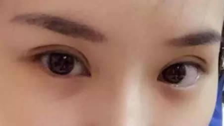 双眼皮术后自然吗?