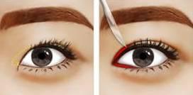 那么什么情况下双眼皮和开眼角更配呢?