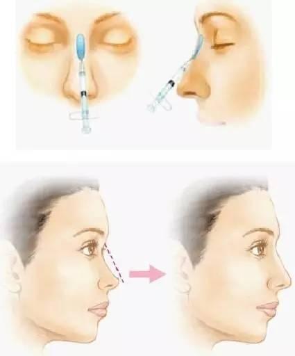 线雕隆鼻满足你对完美鼻型所有要求!