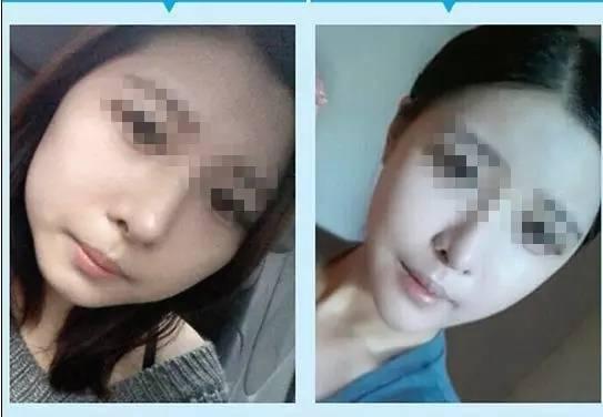 改脸型前后对比照片,她磨了颧骨+削了下颌角,美成这样!