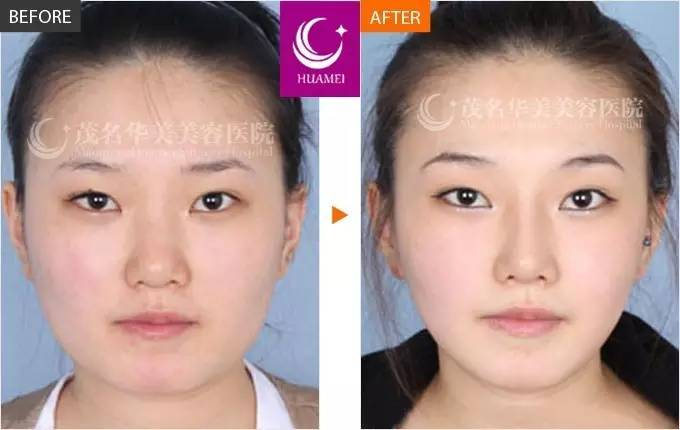 注射瘦脸针的作用怎样