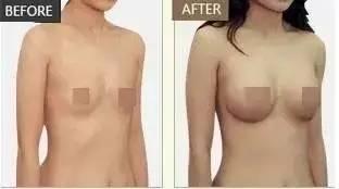 吸脂丰胸效果好吗,人家这叫胸plus,你们的都是胸mini
