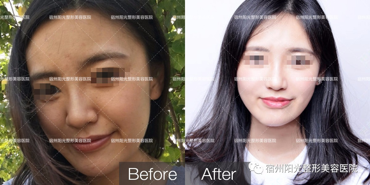水光针的作用与功效,震惊!99%的人每天用着过期的化妆品