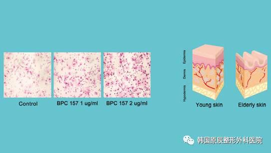 整形常识:干细胞整形术前术后注意事项;