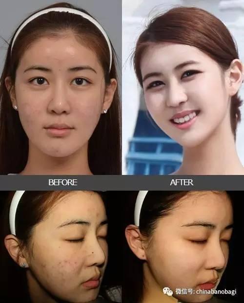 激光祛痘印的方法,趁早接受痘印和痘疤的治疗对皮肤会有更好的效果哦!