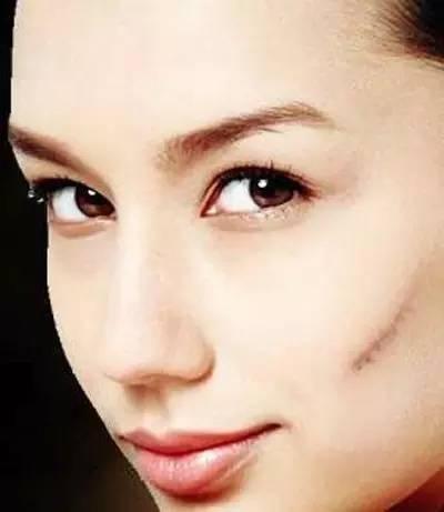 疤痕治疗的有效方法,浅谈疤痕治疗的常见方法