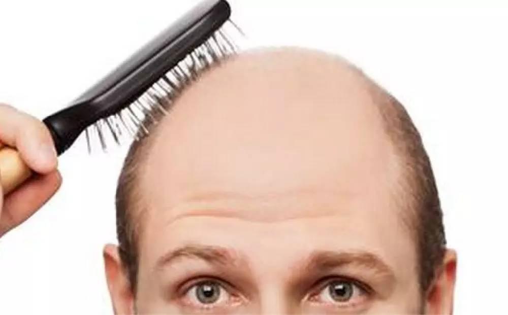 为什么脱发从头顶开始