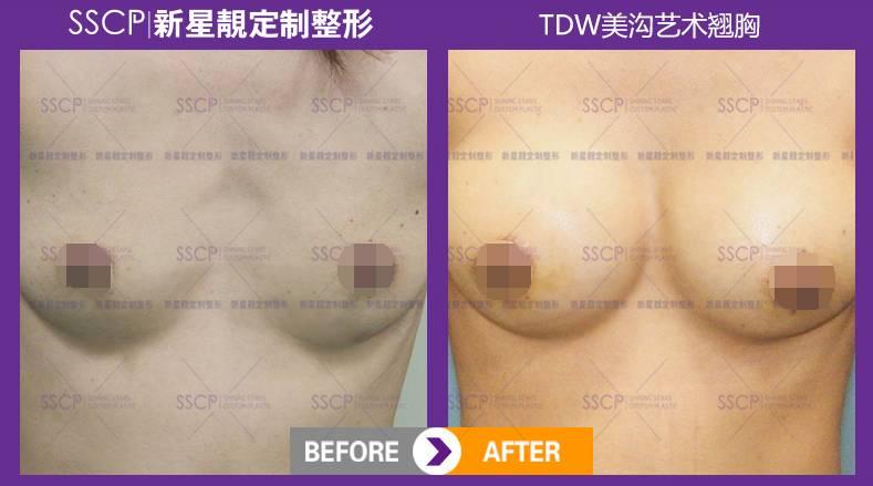 一般情况下自体脂肪隆胸可以增大到什么罩杯?