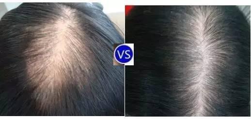 自体毛发移植手术,讨厌脱发、秃顶、发际线高、眉睫毛稀缺……毁掉你的形象?据说,它可以让你缺失的毛发重新长出来