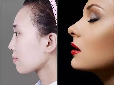 面部提升的良好方法,欧美人羡慕亚洲人不容易老,却不知道我们老起来救不了