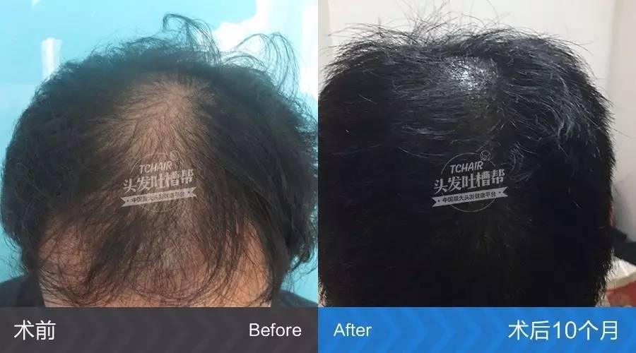 脱发可以治疗吗,脱发好几年了,还能用药物治好吗?