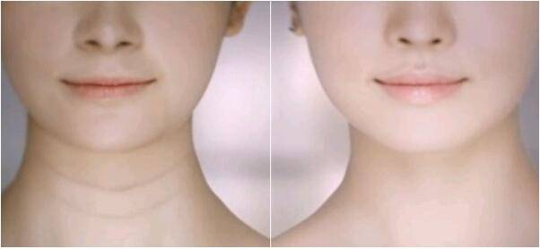 颈纹是怎么形成的,如此漂亮的项链为什么戴在你脖子上不加分反降颜值?