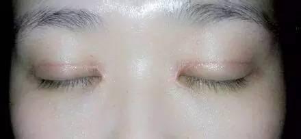 同样是做双眼皮,为什么别人恢复的快,我恢复的慢?