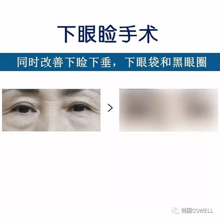 中年人眼部整形种类