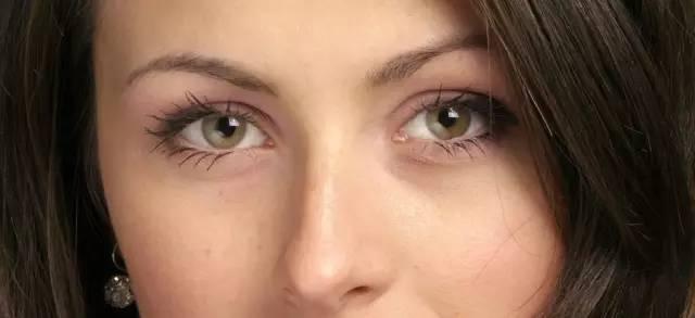 双眼皮,为什么她恢复快,你恢复慢?
