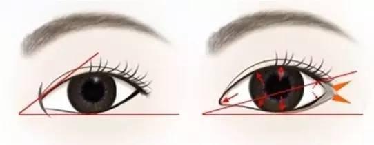 开眼角术的注意事项和恢复时间