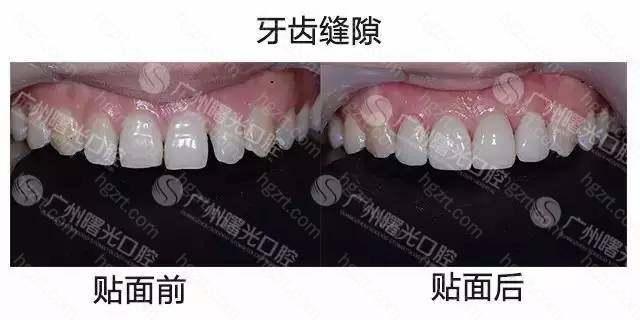 牙齿缝隙、牙齿轻微不齐、牙缺损、氟斑牙、四环素牙、色素牙、过小牙等等