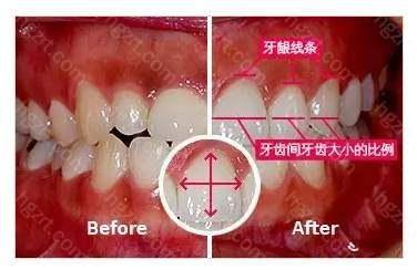 医生需要清楚地了解牙齿的结构美学、极大的知识储备和临床经验
