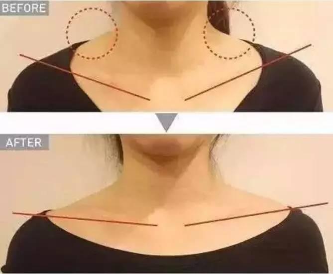 瘦脸针的作用怎么样,瘦脸针这么打,可以让你长高10公分!