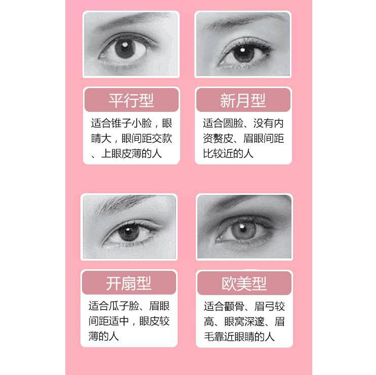 欧式双眼皮效果怎么样