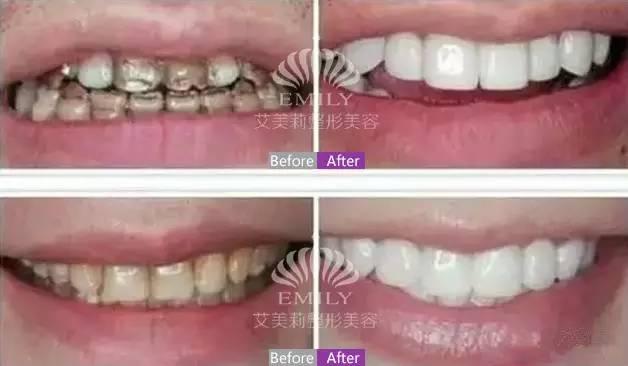 牙贴面修复美牙后,效果简直惊艳……
