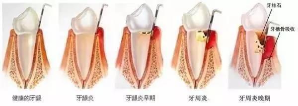 牙疼是怎么回事,痛和无助并存,是种什么样的体验??