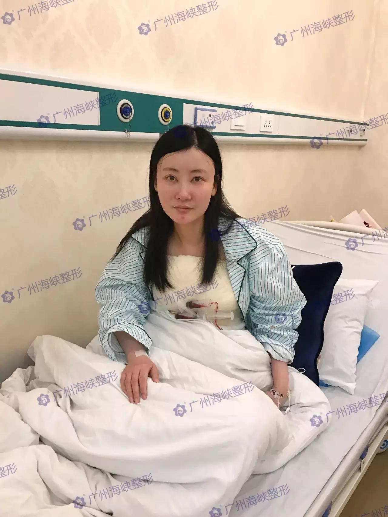 记者首批专访《三生三世》女演员主诊医师:明星丰胸手术成功的关键!