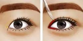 割双眼皮哪家医院好,双眼皮吃藕(chou)是因为什么?原来双眼皮选对搭配才是关键!