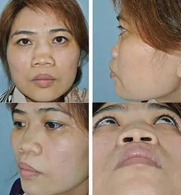 鼻子整形图片,关于垫鼻梁的一些迷思...