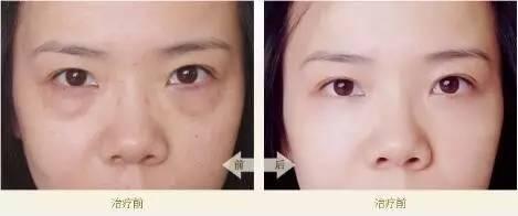 祛眼袋手术后怎么护理?