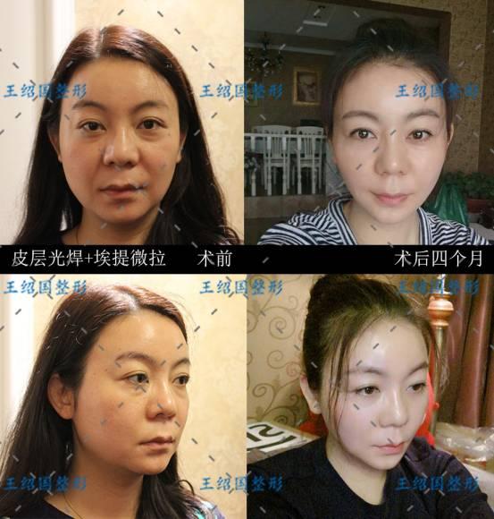 皮层光焊效果怎么样,谁说女人的青春是短暂的?对症下药助你恢复年轻容颜