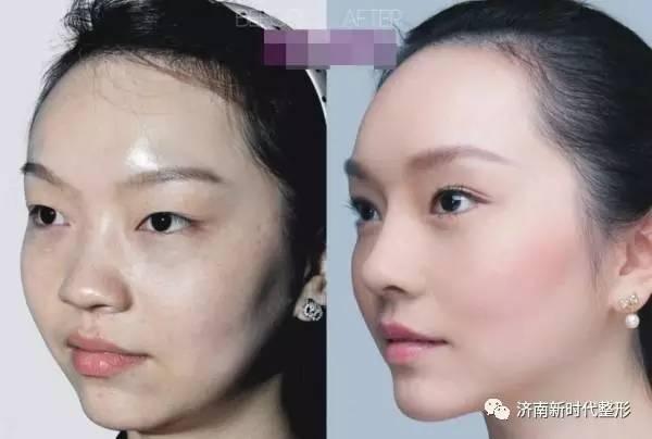 双眼皮到底能改变多少颜值?