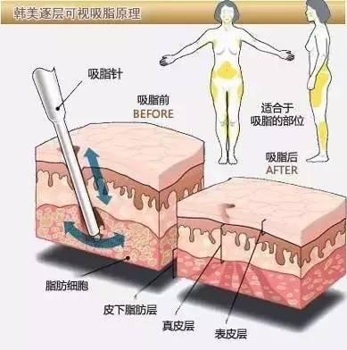 高清晰逐层吸脂术,女人夏天~露出膝盖以上10公分最美...