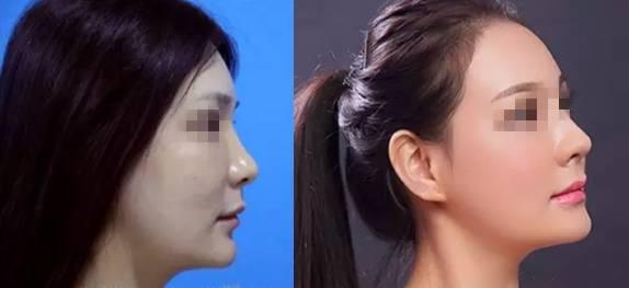 韩式小翘鼻,【五一大放价】江医生精雕小翘鼻仅需1999元
