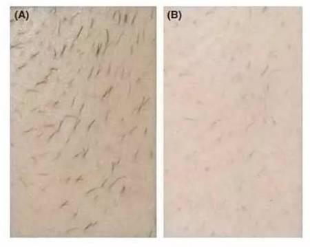体毛太浓密的苦恼,第三条99%体毛多的人都有过