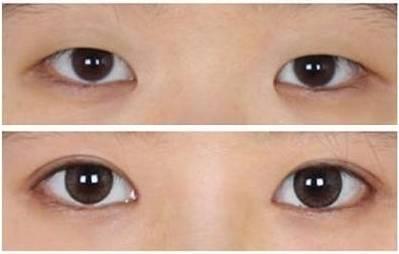 无痕开眼角,美眼搭配美丽翻倍,只属于你的旷世美颜