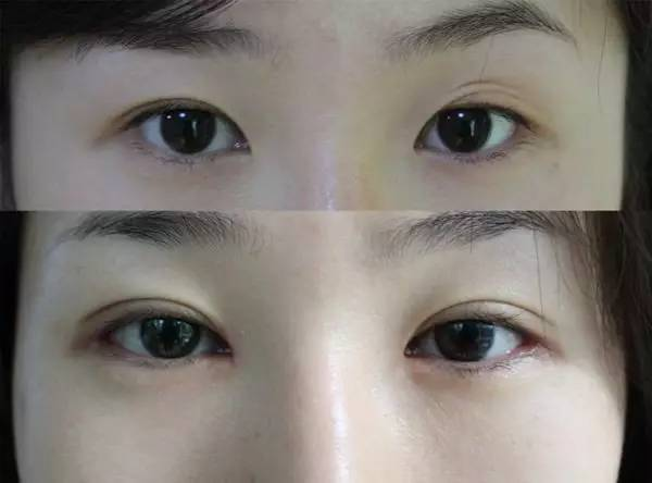 眼部整形修复专家|尹度龙:不做行业里的谁,只做眼部整形修复巨匠!!