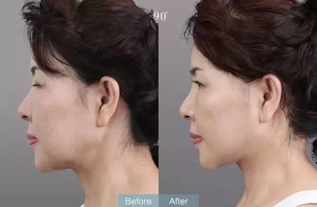 面部精雕整形前后图片