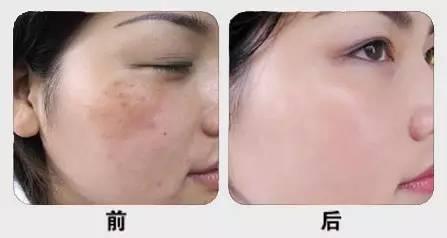修敏产品之修敏之星一一专业解决皮肤问题,给您全新的美丽蜕变