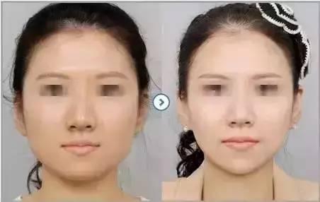 瘦脸针效果图,你还在因为你的大饼脸而躲避拍照吗?
