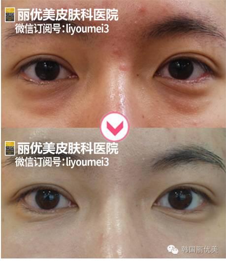 眼袋黑眼圈治疗不开刀,丽优美皮肤科综合激光治疗法