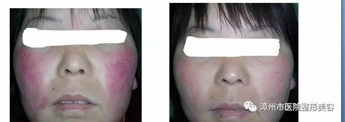 激光治疗疤痕效果|滚蛋吧!疤痕、红胎记!......