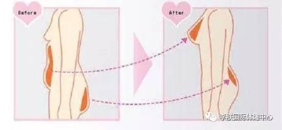 自体脂肪丰胸术后多久可以同房?