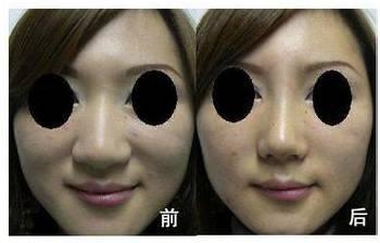 鼻头肥大,你是哪一种?