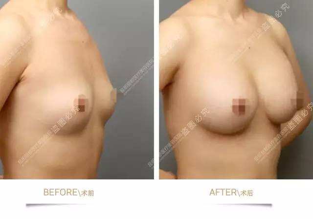 乳腺筋膜后隆胸术——真正的动感隆胸术!
