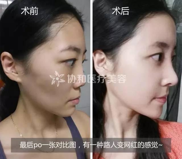 韩式鼻综合整形|巧手匠心打造精致五官,任天平院长5月26-27日协和亲诊,定制专属你的美