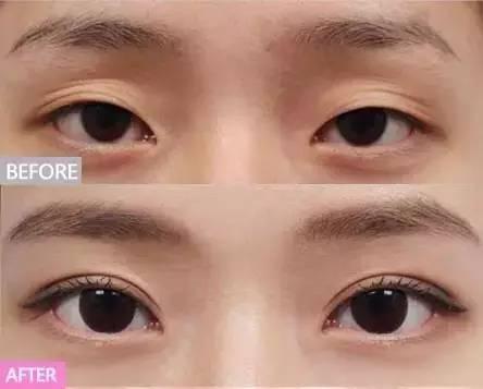 最适合割双眼皮的6种眼型,效果好到爆!